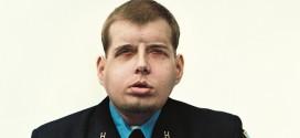 Dramático cambio del bombero que recibió el trasplante de cara más extenso en la historia