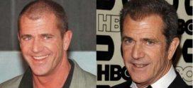 antes y después del implante de cabello